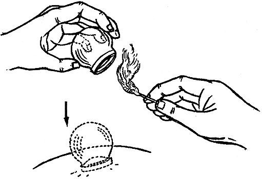 Βεντούζα γυάλινη θεραπευτική μικρή Small jar