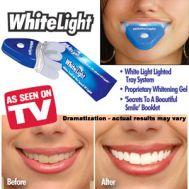 Σύστημα Λεύκανσης Δοντιών White Light