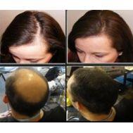 Για φυσικά,πυκνά μαλλιά τέλος η φαλάκρα SUPER BILLION HAIR